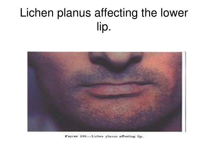 Lichen planus affecting the lower lip.