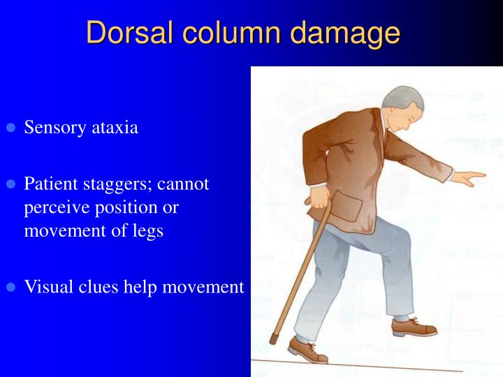 Dorsal column damage
