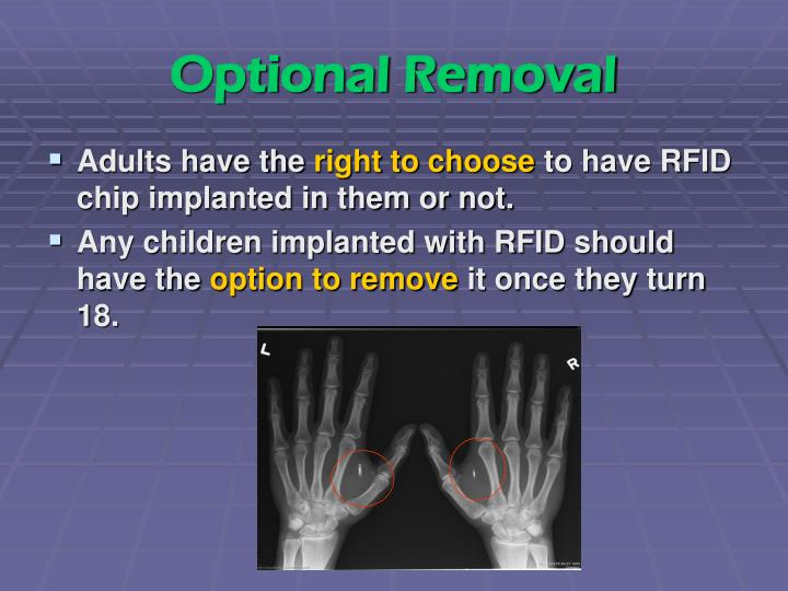 Optional Removal