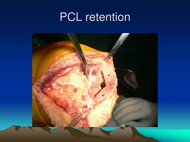 PCL retention