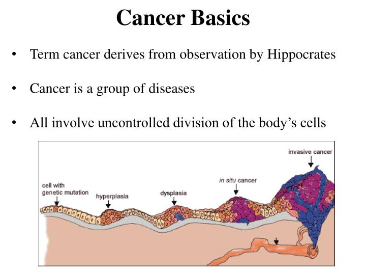 Term cancer derives from observation by Hippocrates