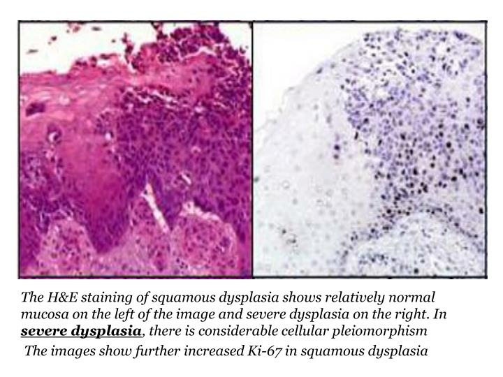 The H&E staining of squamous dysplasia shows relatively normal mucosa on the left of the image and severe dysplasia on the right. In