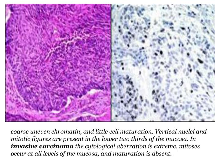 coarse uneven chromatin, and little cell maturation. Vertical nuclei and mitotic figures are present in the lower two thirds of the mucosa. In
