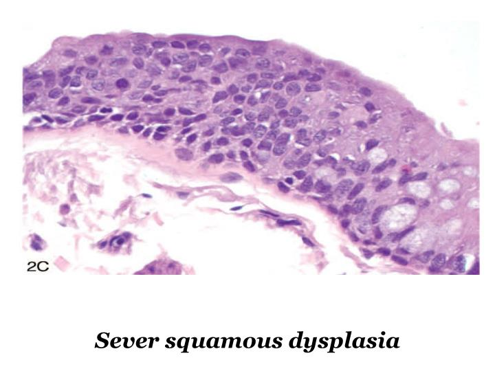 Sever squamous dysplasia