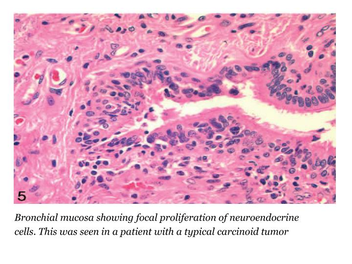 Bronchial mucosa showing focal proliferation of neuroendocrine