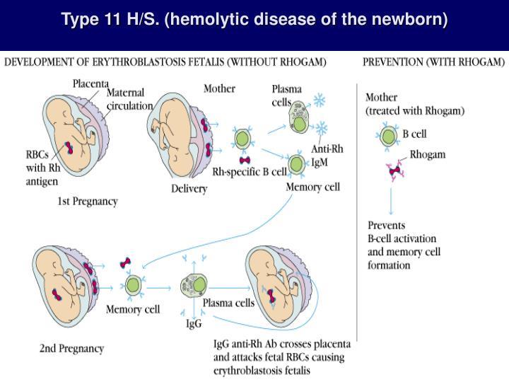Type 11 H/S. (hemolytic disease of the newborn)