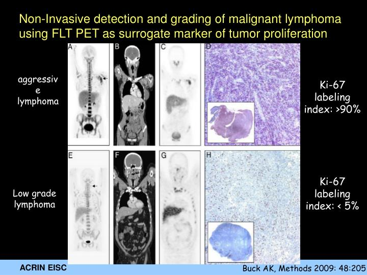 Non-Invasive detection and grading of malignant lymphoma