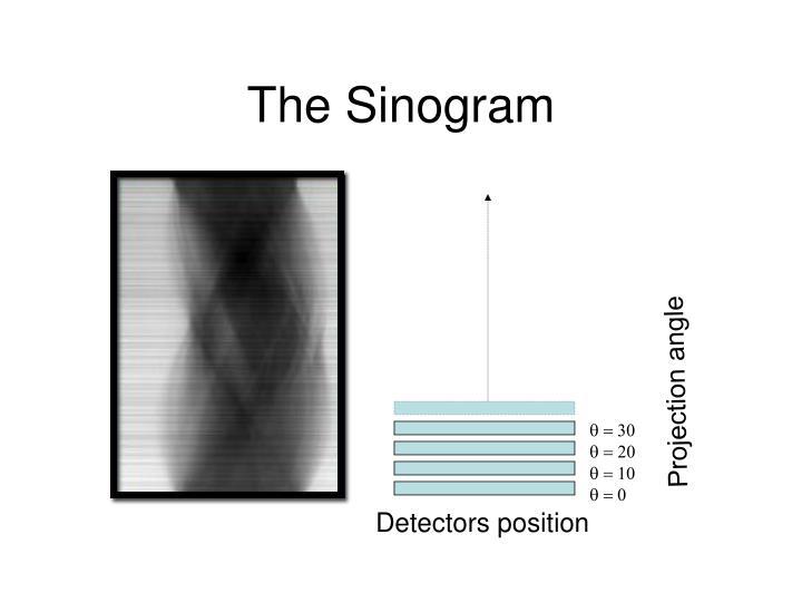 The Sinogram