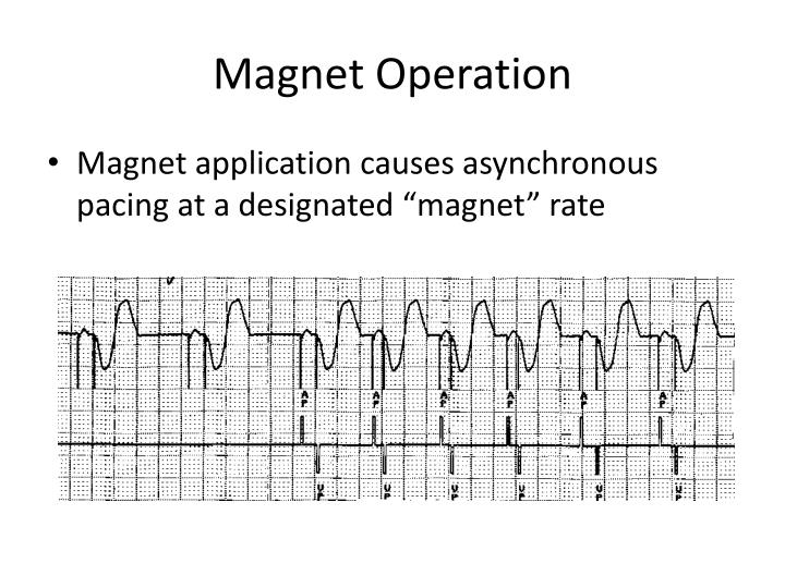 Magnet Operation