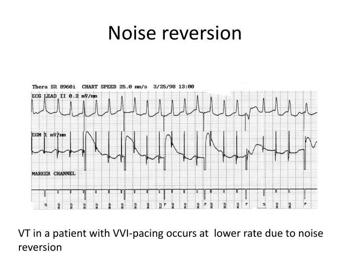 Noise reversion