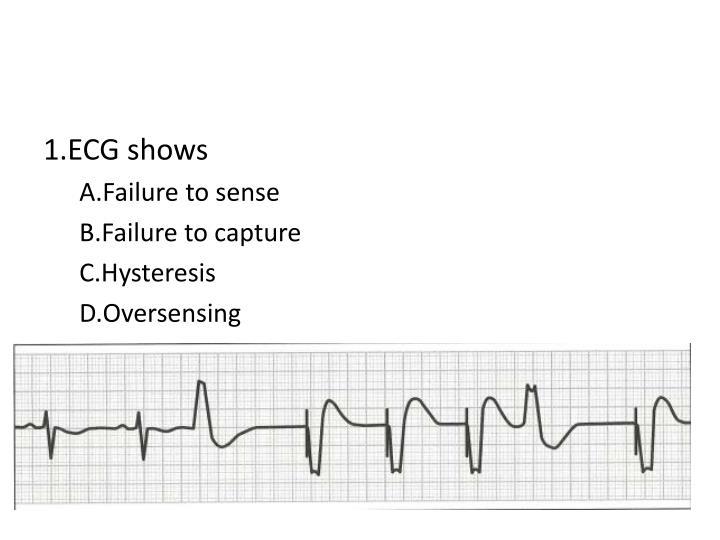 1.ECG shows