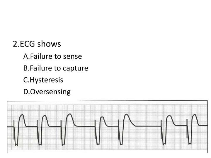 2.ECG shows