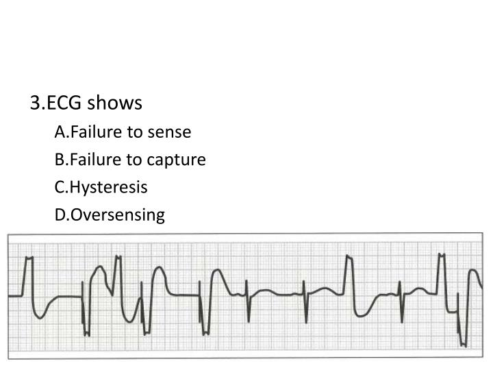 3.ECG shows