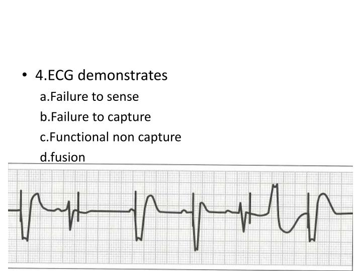 4.ECG demonstrates