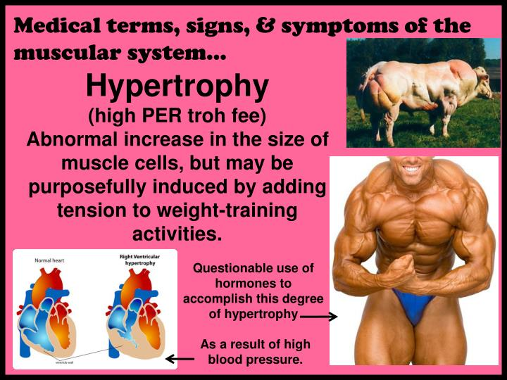 Medical terms, signs, & symptoms of the  muscular system…