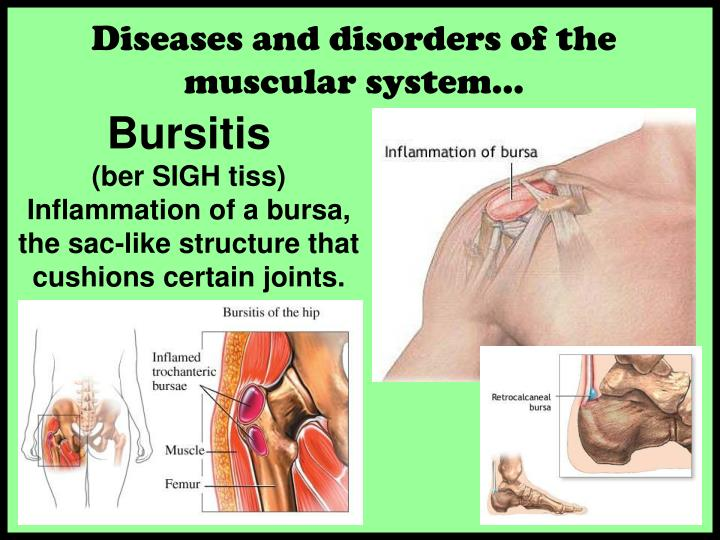 Diseases and disorders of the muscular system…