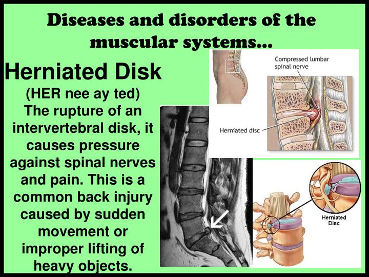 Diseases and disorders of the muscular systems…