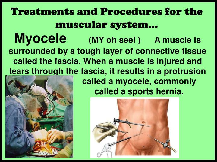 Treatments and Procedures for the  muscular system…