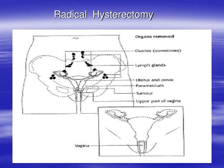 Radical  Hysterectomy