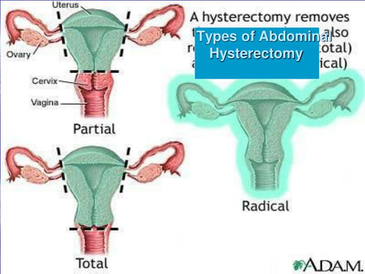 Types of Abdominal          Hysterectomy