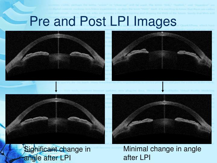 Ppt Assessment Of Anterior Chamber Changes After Laser