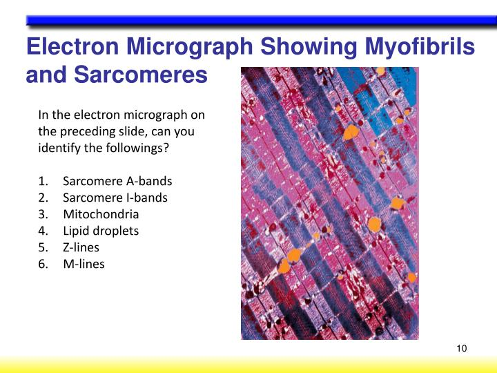 Electron Micrograph Showing Myofibrils and Sarcomeres