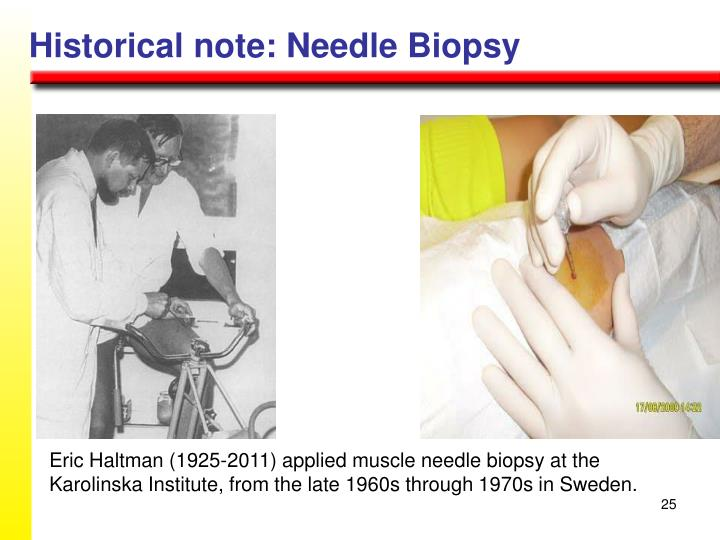 Historical note: Needle Biopsy