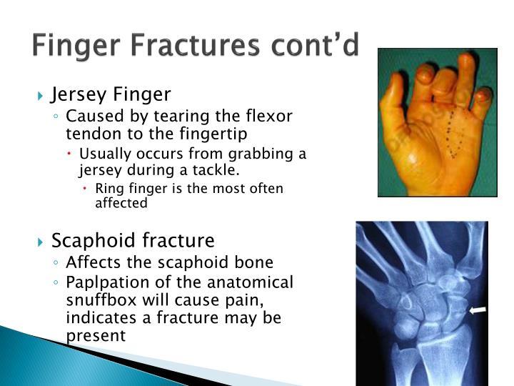 Finger Fractures cont'd