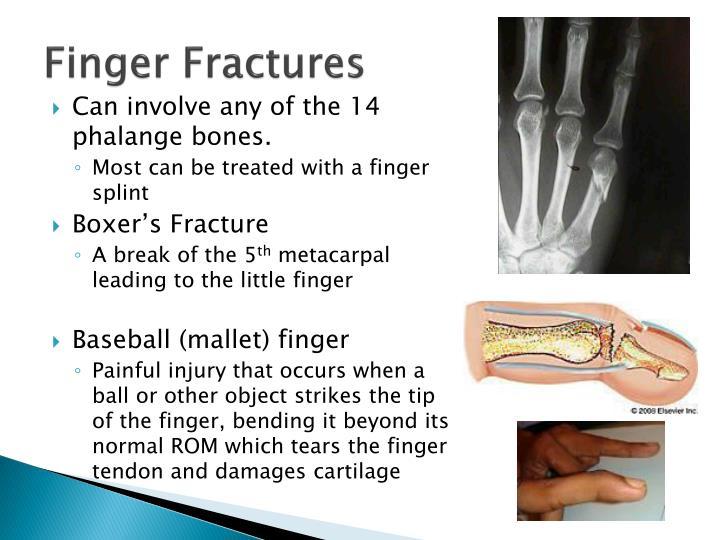 Finger Fractures