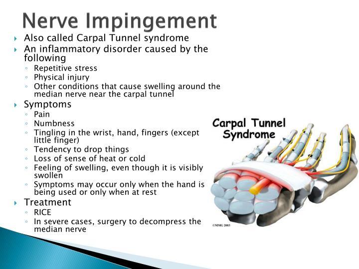 Nerve Impingement