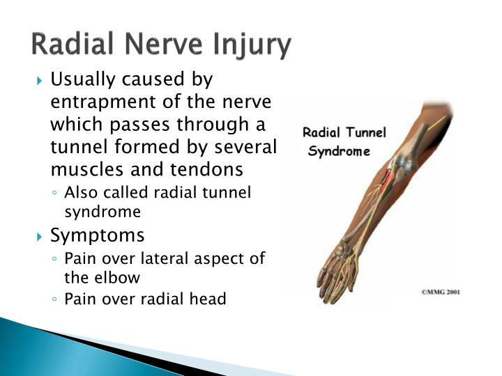 Radial Nerve Injury