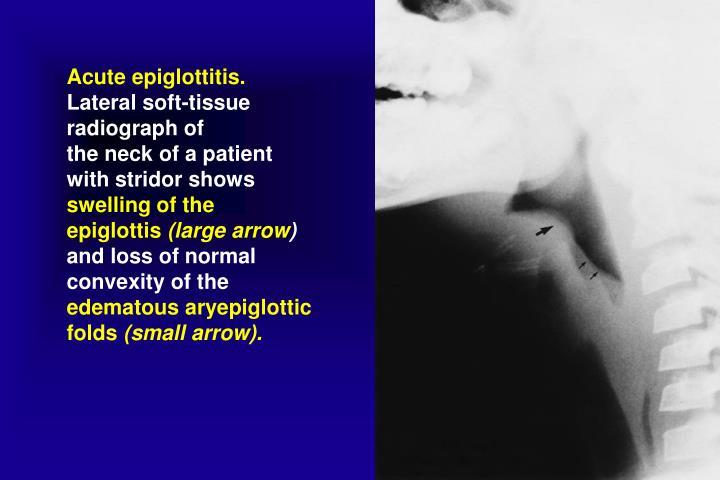 Acute epiglottitis.