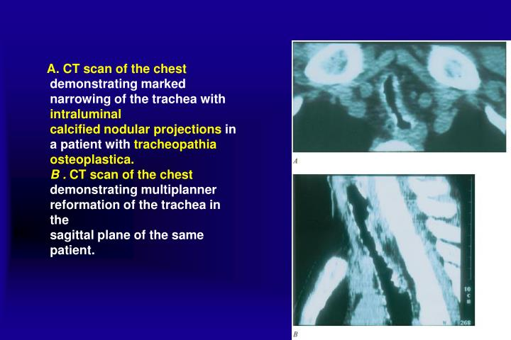A. CT scan of the chest
