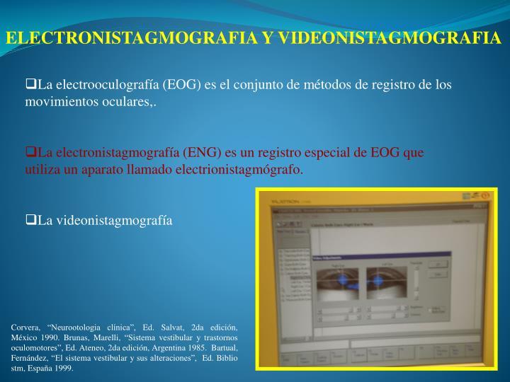 ELECTRONISTAGMOGRAFIA Y VIDEONISTAGMOGRAFIA