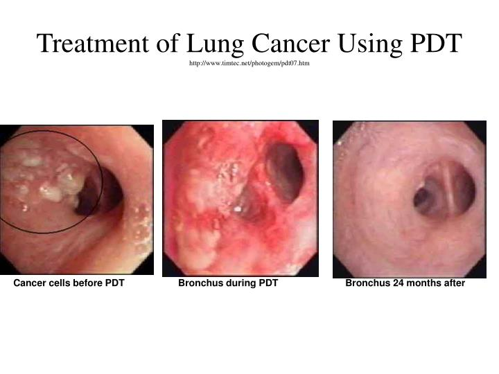 Treatment of Lung Cancer Using PDT