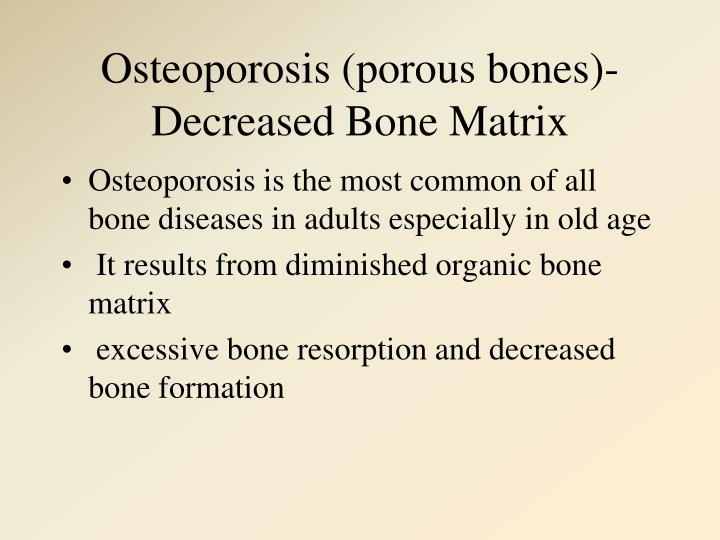 Osteoporosis (porous bones)-Decreased Bone Matrix