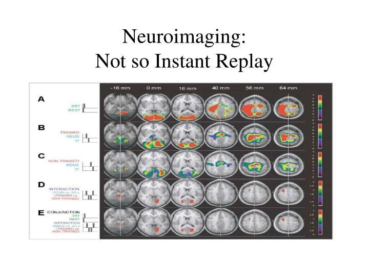 Neuroimaging: