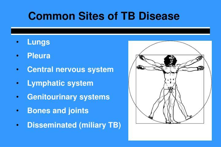 Common Sites of TB Disease