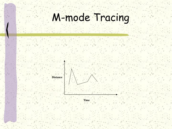 M-mode Tracing