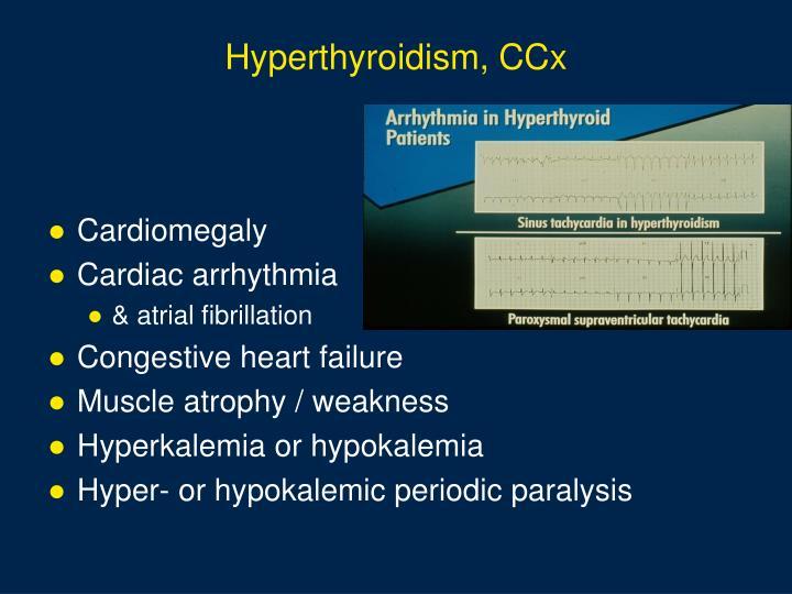 Hyperthyroidism, CCx