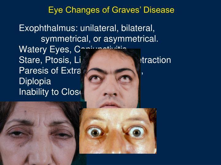 Eye Changes of Graves' Disease
