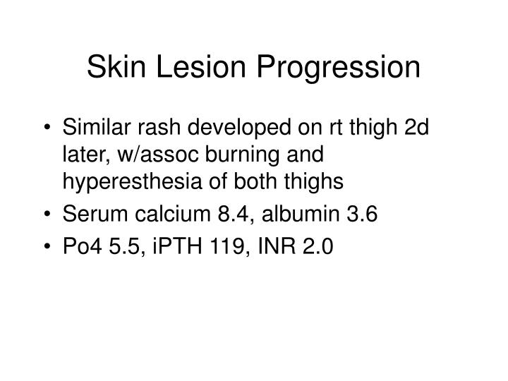 Similar rash developed on rt thigh 2d later, w/assoc burning and hyperesthesia of both thighs