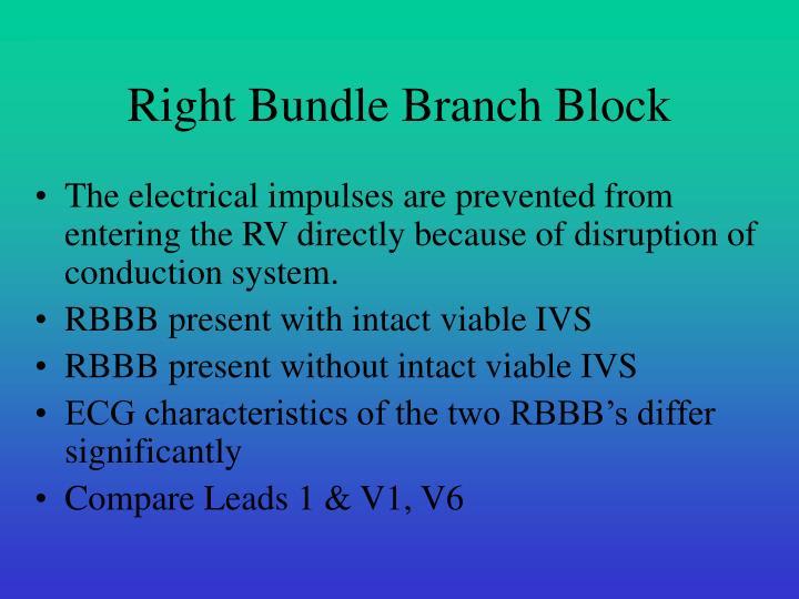 Right Bundle Branch Block