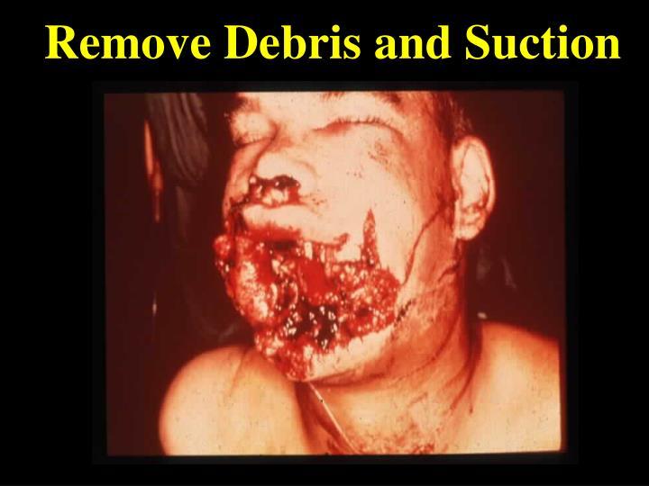 Remove Debris and Suction