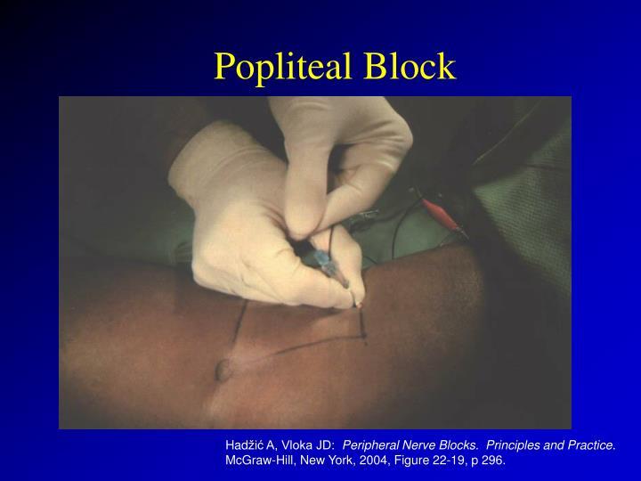 Popliteal Block