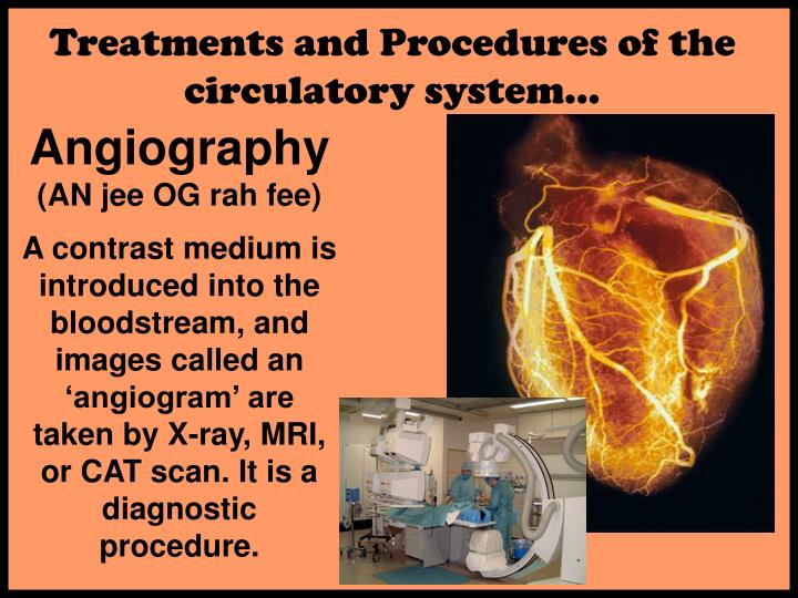 Treatments and Procedures of the circulatory system…