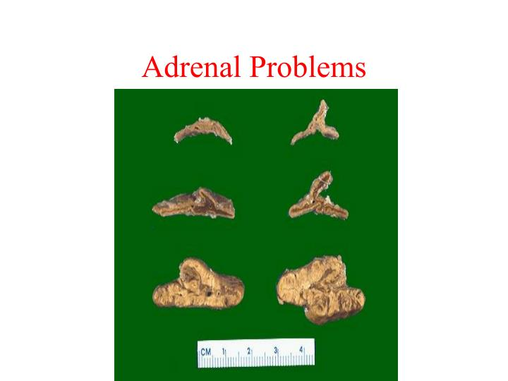 Adrenal Problems