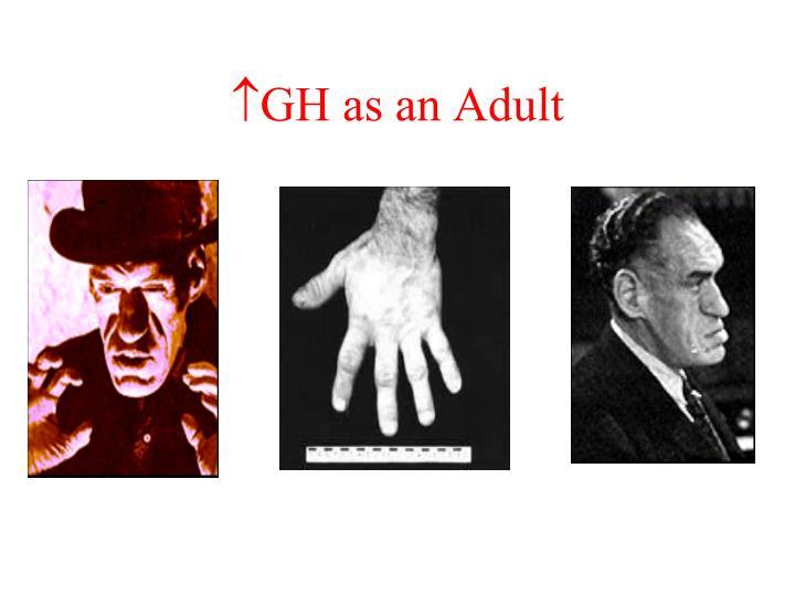 GH as an Adult