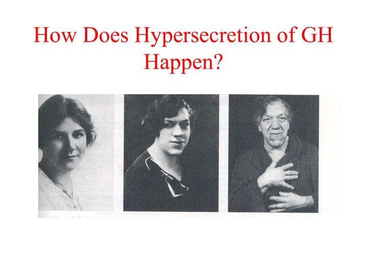 How Does Hypersecretion of GH Happen?