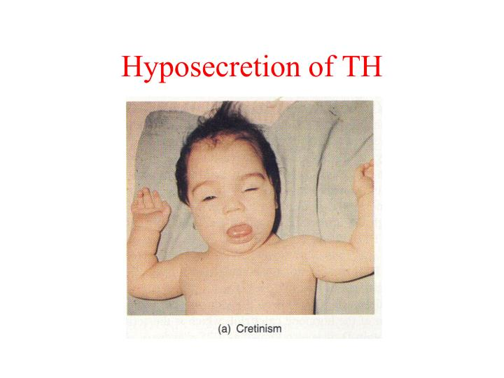 Hyposecretion of TH